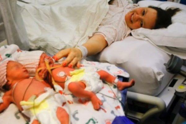 توأم مشتبكي الأيدي منذ لحظة ولادتهما