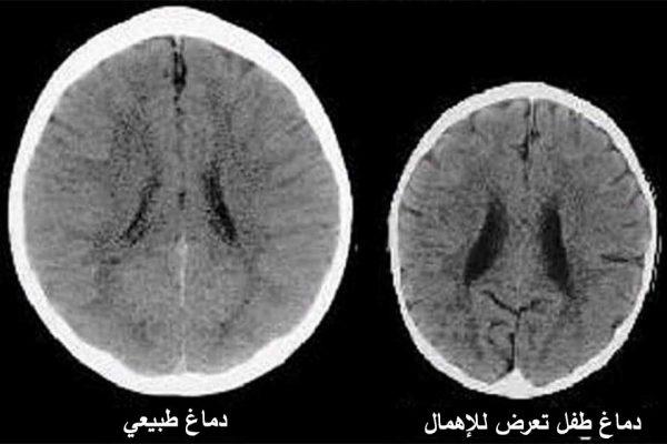 صور لدماغ طفلين بعمر ثلاث سنوات تظهر بوضوح تأثير الإهمال